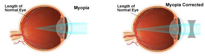 visual of Short-Sightedness (Myopia)